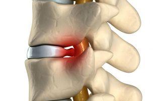 Компрессионный перелом шейного отдела позвоночника: транспортировка и лечение