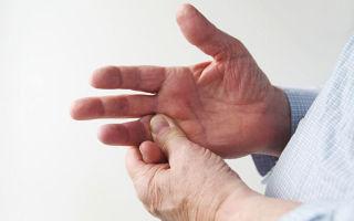 Растяжение связок большого пальца руки — симптомы и лечение, последствия и осложнения после травмы