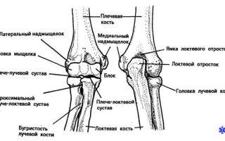 Вывих и подвывих локтевого сустава у детей: симптомы и лечение локтя, осложнения