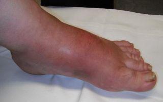 Ортез на голеностоп жесткой фиксации: тутор, лангета и фиксирующий бандаж, спортивный фиксатор стопы при растяжении