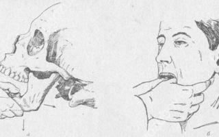 Как вправить челюсть самостоятельно или у врача, лечение после вывиха