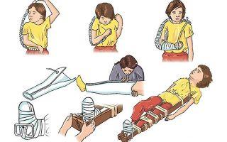 Первая помощь при переломах и вывихах: действия при закрытой и открытой травме