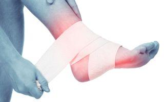 Болит голеностоп после бега и при ходьбе — причины и что делать если опухла стопа, лечение боли в связках голеностопного сустава