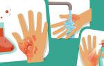 Как снять боль от ожога кипятком в домашних условиях и избавиться от боли при солнечном ожоге, обезболивание народными средствами