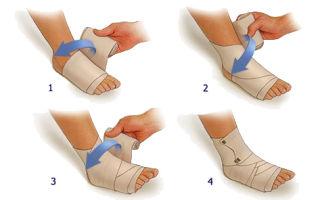 Надрыв связок голеностопа — лечение и симптомы, сколько заживает голеностопный сустав и реабилитация
