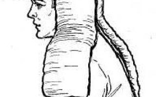 Правила наложения шин при переломах: как наложить приспособление Крамера и Дитерихса (алгоритм действий)