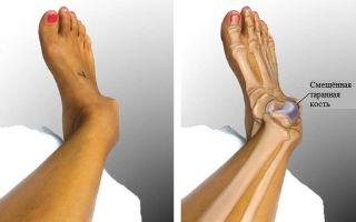 Первая медицинская помощь при вывихе конечности — ноги, лодыжки (стопы) и руки, симптомы и причины растяжения сустава