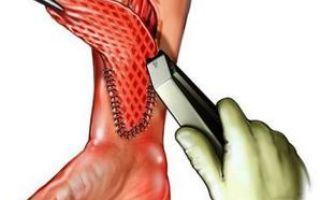 Рубцы — народные методы для рассасывания шрамов на лице, после операции и ожога