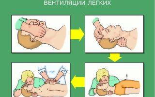 Первая помощь при утоплении (кратко по пунктам): как правильно спасать утопающего ребенка