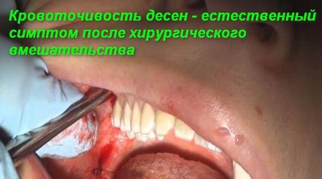 Удалили зуб — что делать после удаления и как нужно себя вести после того как вырвали зуб, как долго болит десна и чем снять боль