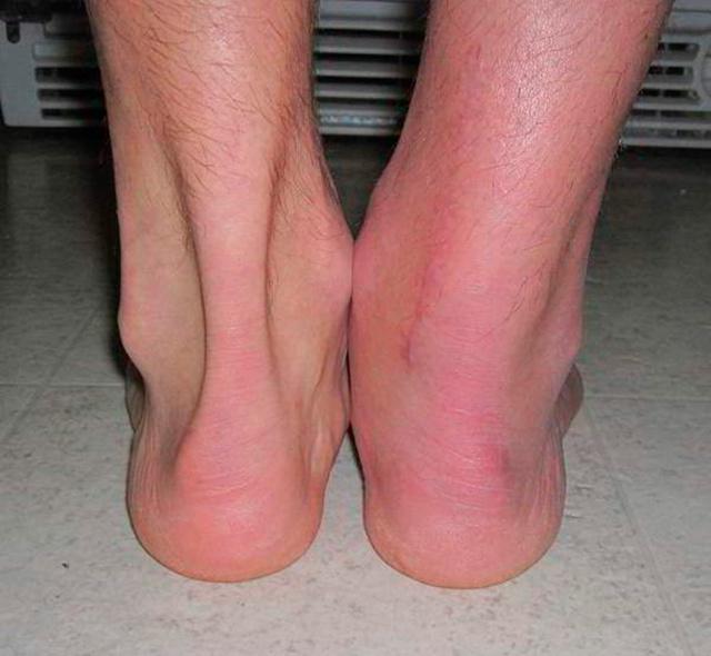 Бурсит ахиллова сухожилия — лечение народными средствами и мазями, причины и симптомы, узи и фото ахилла
