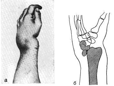 Вывих лучезапястного сустава кисти руки: симптомы и лечение запястья, первая помощь