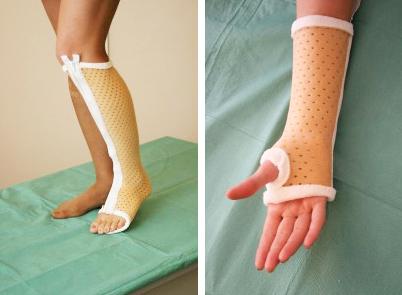 Повязки на руку при переломе, лангеты и пластиковые гипсы на плечевой сустав и кисть