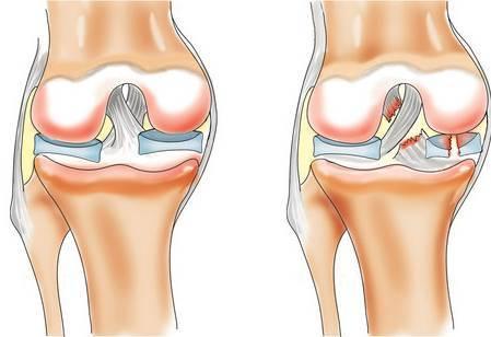 Надрыв крестообразной связки коленного сустава — симптомы и лечение, последствия и осложнения повреждения