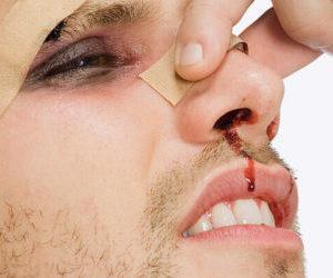Репозиция костей носа после травмы: что это такое и как лечить, реабилитация
