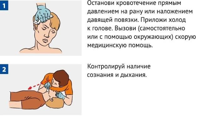 Гематома на голове после ушиба: лечение в домашних условиях, первая помощь