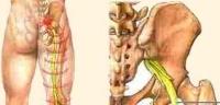 Перелом основания черепа: симптомы и первая помощь, методы лечения травмы, осложнения