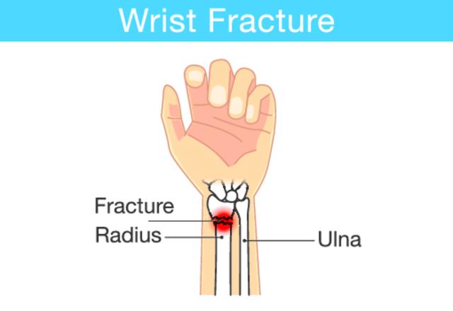 Перелом лучевой кости руки: лечение, срок срастания и методы реабилитации