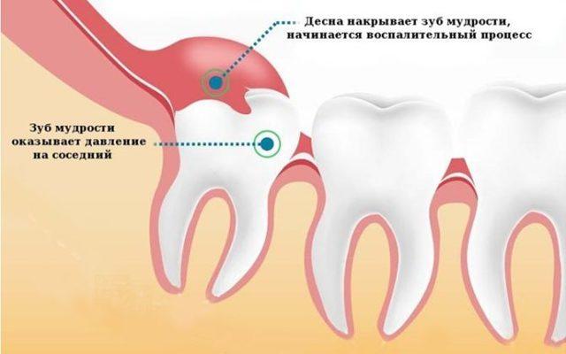 Лезет зуб мудрости и болит десна — что делать и чем снять боль когда растет зуб, как помочь если опухла и поднялась десна