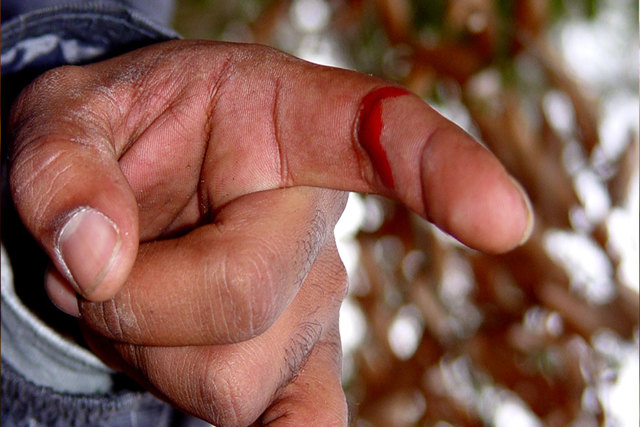 Как остановить кровь при порезе пальца: первая помощь и правила обработки раны при глубоком повреждении
