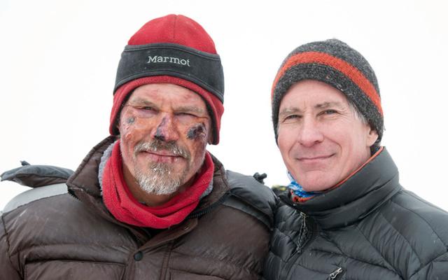 Обморожение лица: что делать после отморожения и как защитить кожу от холода