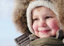 Обморожение щек: первая помощь, симптомы и лечение отморожения кожи лица