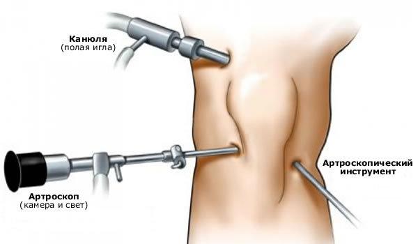 Повреждение связок коленного сустава — симптомы и лечение в домашних условиях, как долго заживает травма колена и мазь для связок