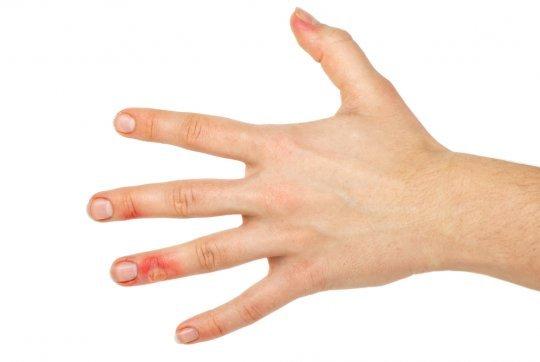 Как лечить ожог в домашних условиях (быстро), лечение термического ожога с пузырями, что делать и чем мазать если обжег руку