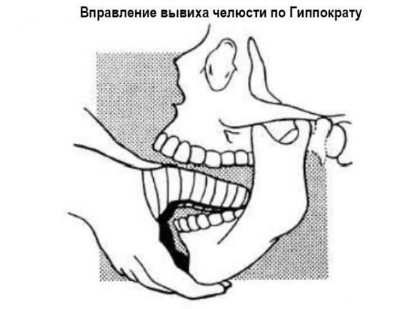 Вывих нижней челюсти: симптомы и лечение травмы, первая помощь пострадавшему