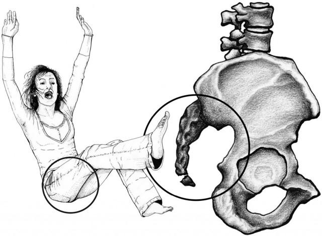 Вывих и подвывих копчика: симптомы и лечение травмы, первая помощь пострадавшему