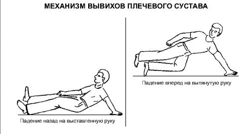 Симптомы вывиха плечевого сустава, как определить травму и оказать первую помощь