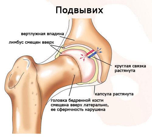Вывих тазобедренного сустава у новорожденных: лечение и реабилитация, осложнения