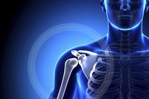 faq вывих плечевого сустава: армия, онемение руки и боль, иммобилизация при травме