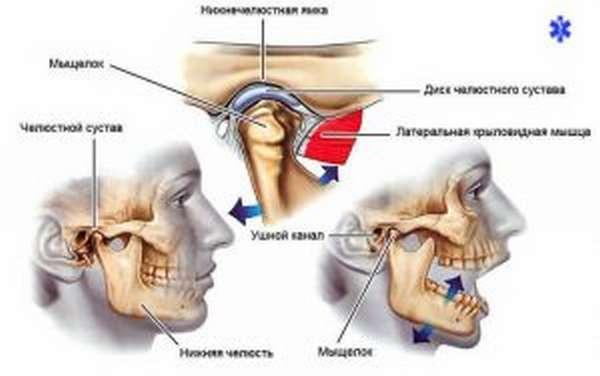 Привычный вывих челюсти: лечение хронической травмы и реабилитация пациента