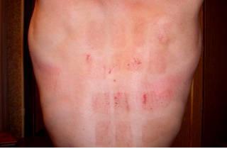 Как ставить горчичники — инструкция по применению и техника постановки, куда класть и время воздействия на кожу