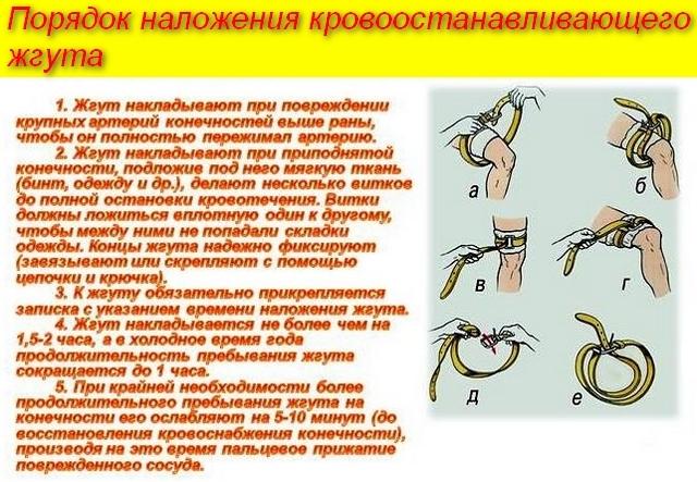 Артериальный и венозный жгут