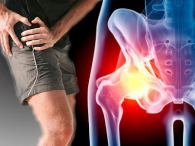 Растяжение паховых связок — лечение и тейпирование мышц паха, симптомы у мужчин и женщин