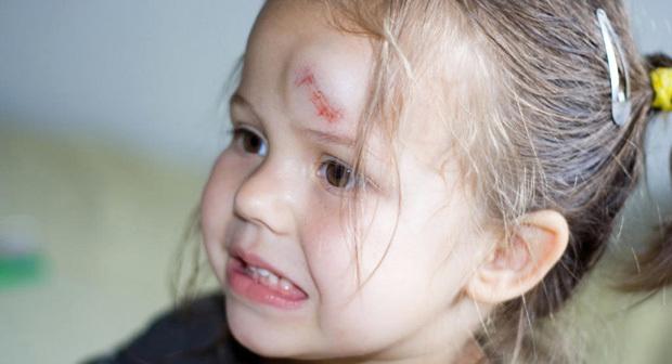 Как остановить кровь на голове при ушибах, что делать если ребенок разбил голову