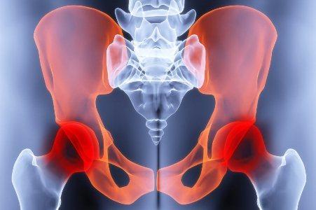 Воспаление связок тазобедренного сустава — симптомы и лечение, признаки разрыва и растяжения связочного аппарата и мышц