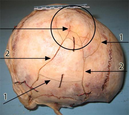 Перелом черепа: симптомы, лечение и последствия травмы, первая помощь