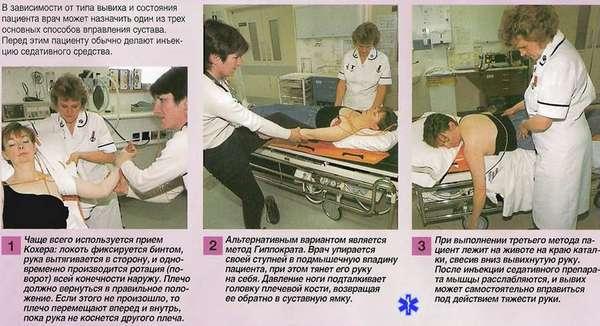 Вывих большого пальца руки: симптомы и лечение, что делать в оказание первой помощи