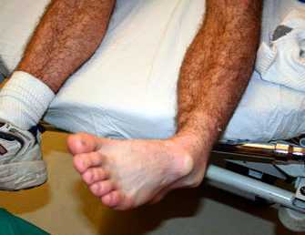 Вывих голеностопа: лечение и симптомы травмы, первая помощь голеностопному суставу