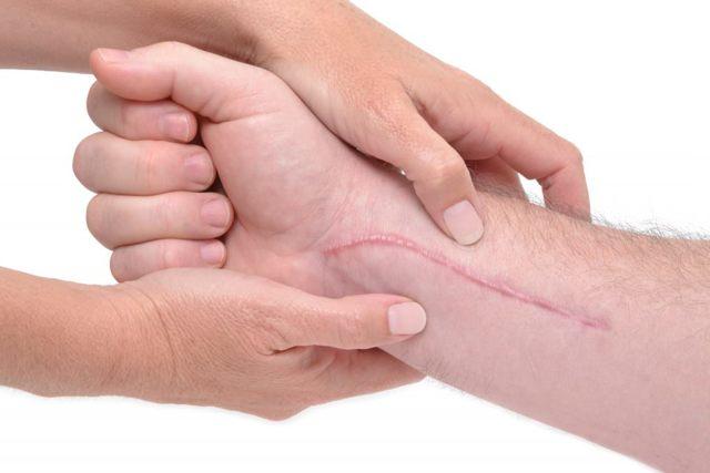 Как убрать шрамы на руке от порезов и избавиться от рубцов после ожога, перекрытие шрама тату и другие способы его скрыть