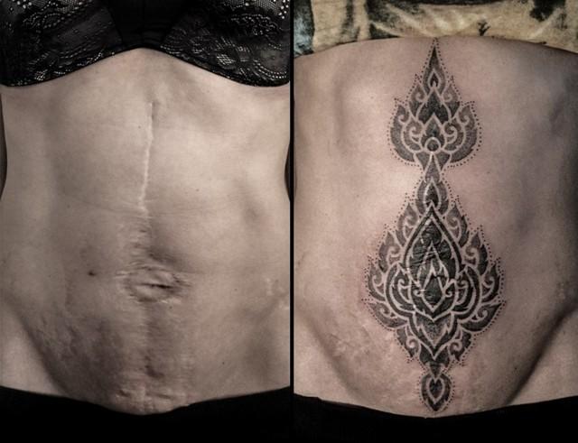 Тату на шрамах на руке и животе от кесарева и аппендицита, маскирующие татуировки для девушек, камуфляж рубцов татуажем