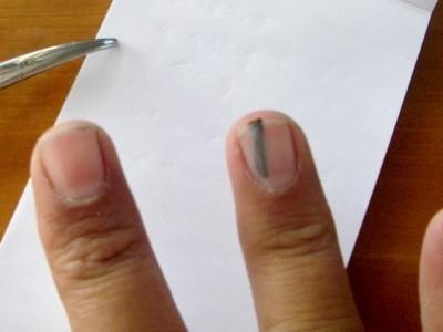 Как вытащить занозу из пальца или пятки у ребенка и взрослого без иголки: что делать если она глубоко и ее не видно