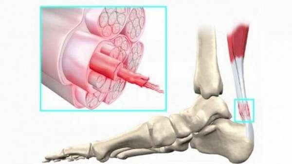 Как лечить ахиллово сухожилие в домашних условиях, лечение разрыва ахилла и чем снять боль при травме ахиллесового сухожилия