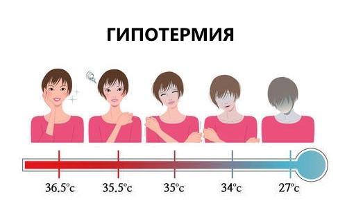 Виды переохлаждения (стадии гипотермии): признаки легкого, глубокого и сильного охлаждения организма