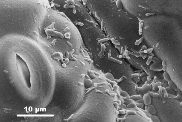 Чем восстановить микрофлору кишечника: препараты и средства нормализующие флору