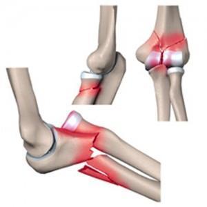 Перелом лучевой кости со смещением: первая помощь, как лечить и срок срастания