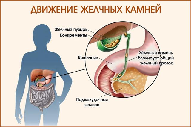 Печеночная колика — симптомы и первая помощь, алгоритм оказания неотложной помощи при приступе желчной колики